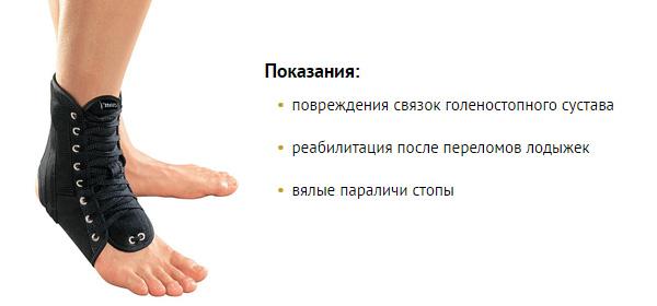 Голеностопный сустав почему болит
