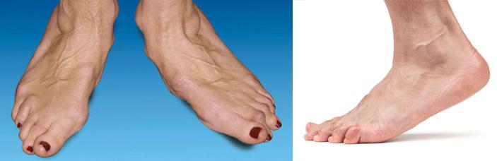 Артроз мелких суставов стопы лечение Суставы