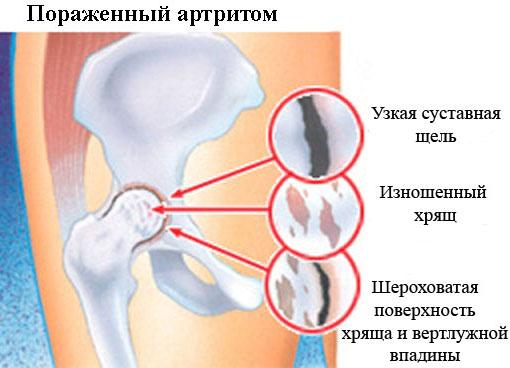 Особенности заболевания артрита