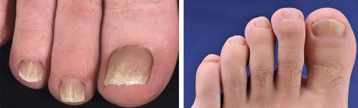 Проявления и симптомы грибка на ногах