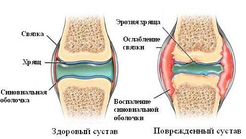 Поврежденные суставы