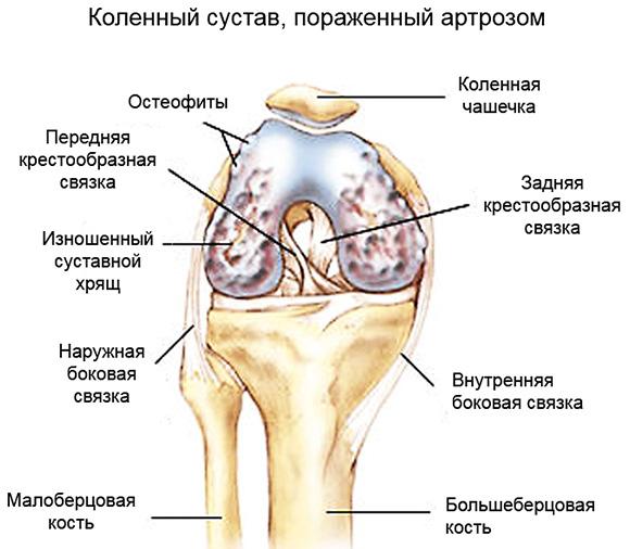 13 народных средств для лечения артроза коленного сустава