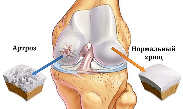 Артроз мелких суставов стопы лечение