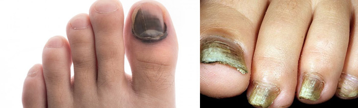 Ногти на ногах потемнели
