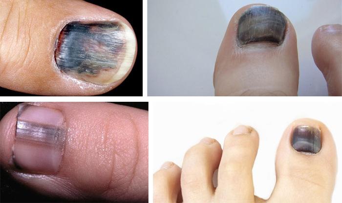 Черный ноготь на большом пальце ноги