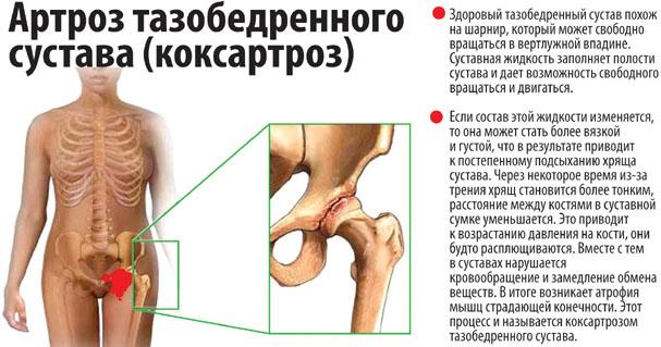Признаки коксартроза