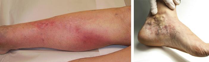 На фото признаки тромбоза
