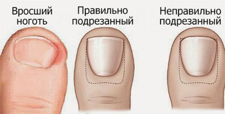 Врастание ногтей на ногах