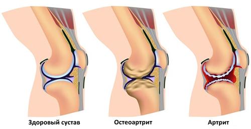 Развитие остеоартрита