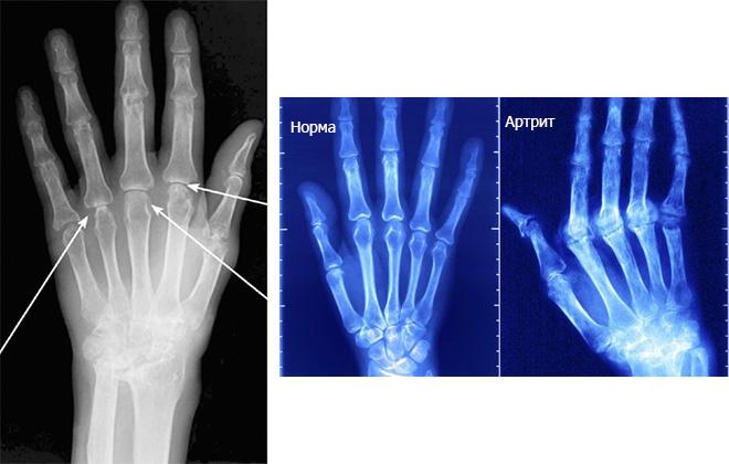 Рентгенограмма