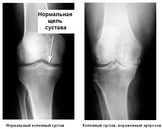 Рентген сустава