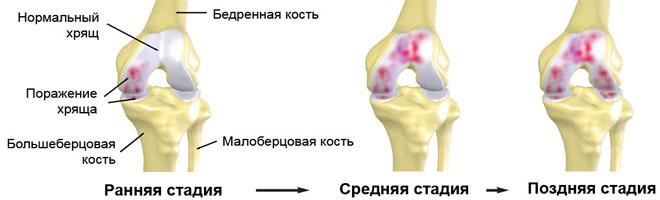 Артроз тазобедренного сустава 2 степени как лечить