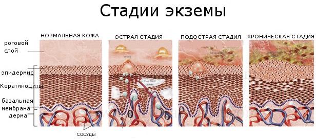 Стадии патологии