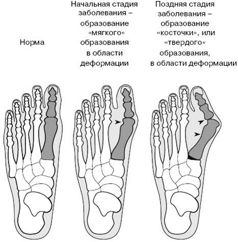 Стадии развития недуга