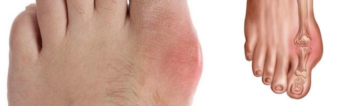 Терапия при артрите