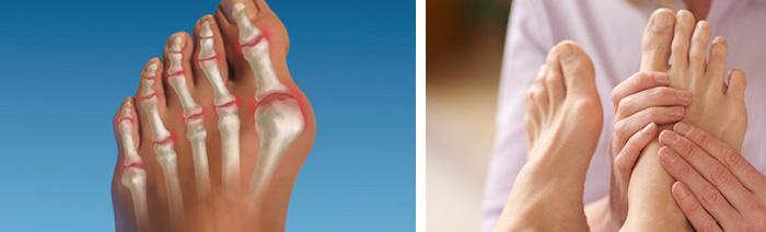 Терапия при артрозе ступней