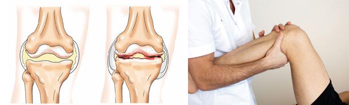 Артроз коленных суставов 2 степени лечение в домашних условиях 419