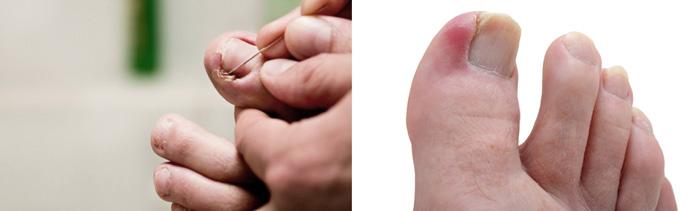 Терапия при врастающем ногте