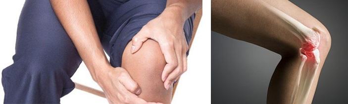Терапия при заболевании суставов