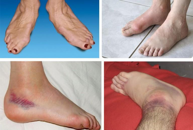 Болит мышца на ноге у ребенка