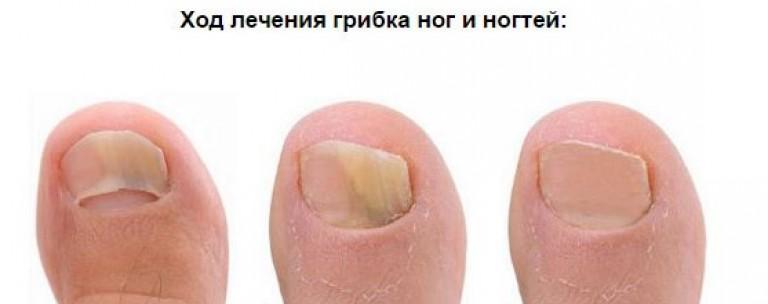 Как быстро вылечить грибок ногтей на руках в домашних условиях быстро