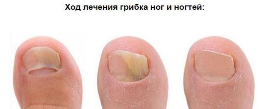 Обзор спреев для лечения грибка на ногах