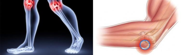 лечение суставов пальцев рук медом