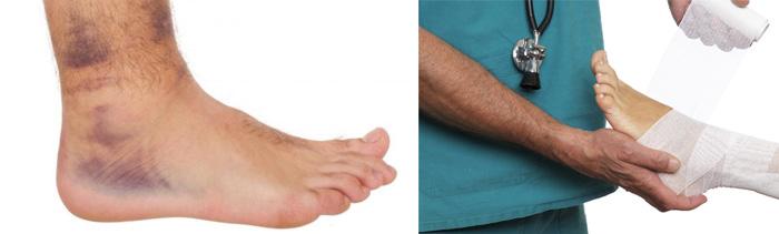 Разрыв связок голеностопного сустава: сколько заживает, лечение