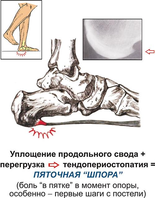 Как избавиться от пяточной шпоры на ноге быстро и навсегда: способы лечения, народные средства