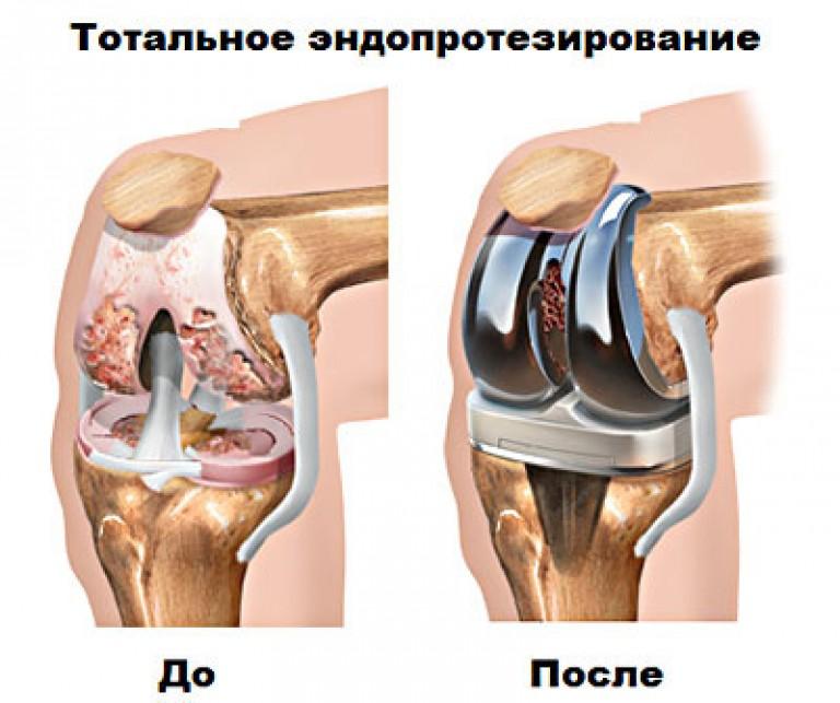 сколько стоит коленный сустав заменит