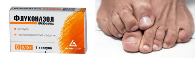 Какие таблетки надо пить при грибке на ногтях ног