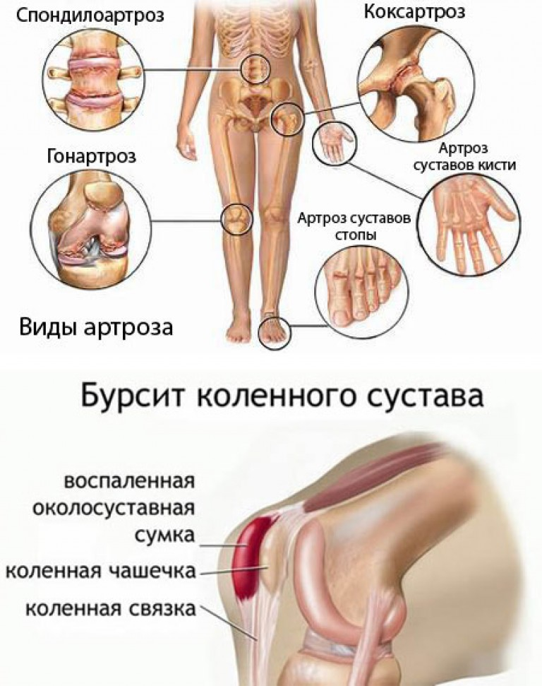 болит нога левая в тазобедерном суставе
