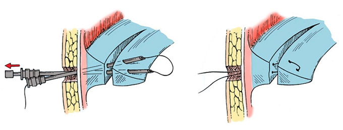 Артроскопический шов