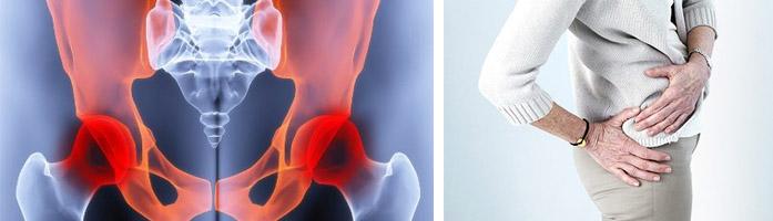 приступ артроза тазобедренного сустава