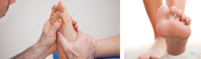 Косточка на ноге - к какому врачу обратиться и как это лечить - ОртоДок