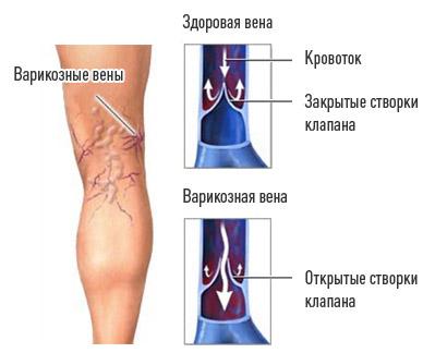 Симптомы нарушения кровообращения нижних конечностей и способы лечения, меры профилактики