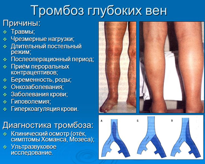 Возможные причины тромбофлебита