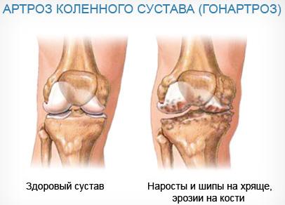 Можно ли вылечить артроз коленного сустава 1 степени
