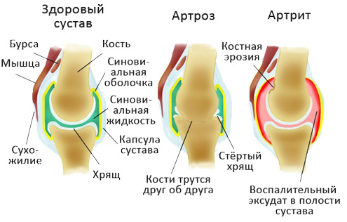 Деформация суставов