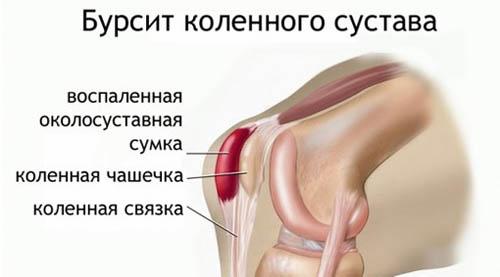 хрящевой сустав