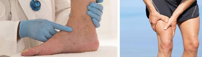 Лечение варикоза глубоких вен на ногах