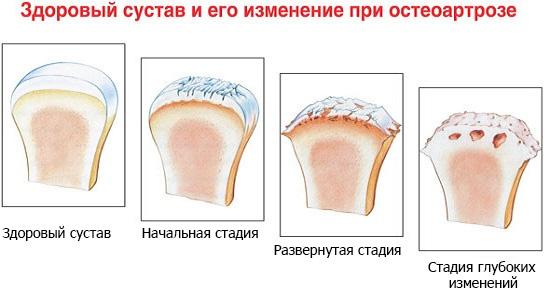 Изменения при остеоартрозе