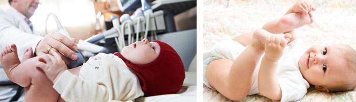 Исследование ТБС у новорожденных детей