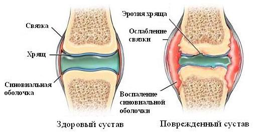 Как проявляется патология суставов