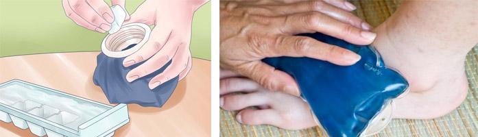 Лечение бурсита народными средствами в домашних условиях, обзор самых эффективных рецептов