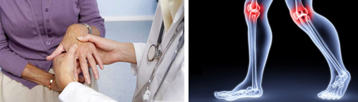 Какой специалист лечит артрит плечевого сустава суставы коленные скрипят