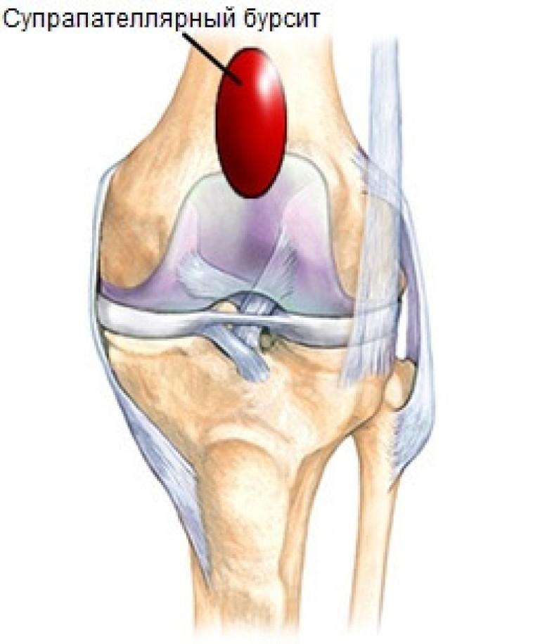 как лечить бурсит в коленных суставов