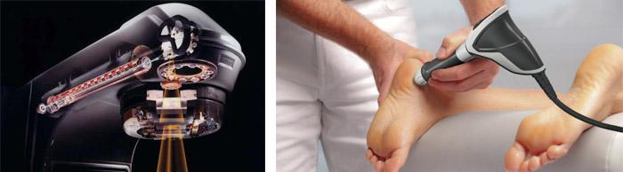 Особенности лечения костного нароста