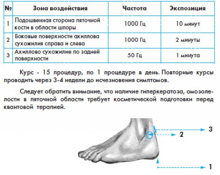 Шпора пяточная лечение в домашних условиях желчью