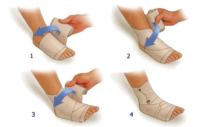 как лечить растяжение суставов